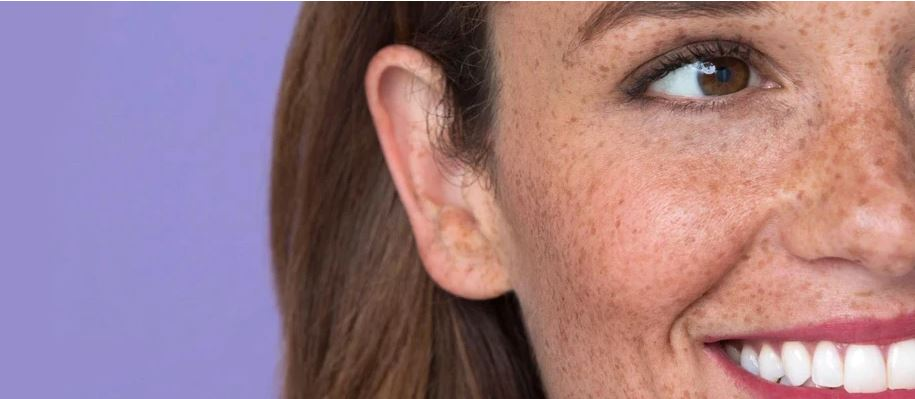 Radiant Skin Canterbury Beauty Salon